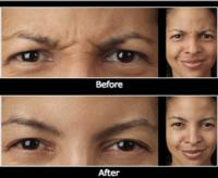 A Look at the Most Popular Non-Surgical Aesthetic Procedures of 2012