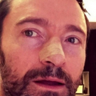 Hugh Jackman Reveals Yet Another Skin Cancer Procedure; Urges Sunscreen Use