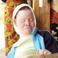 Tanzania Albinism Collective Release New Single Photo