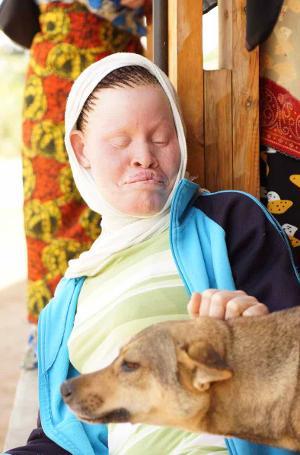 Tanzania Albinism Collective Release New Single