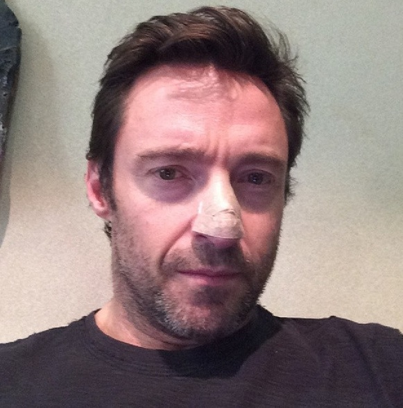 Hugh Jackman Reveals Skin Cancer Scare on Instagram