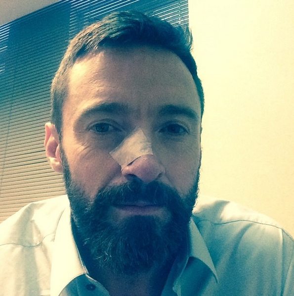 Hugh Jackman Reveals 2nd Skin Cancer; Urges Sunscreen Usage